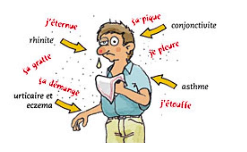 Allergique piqure